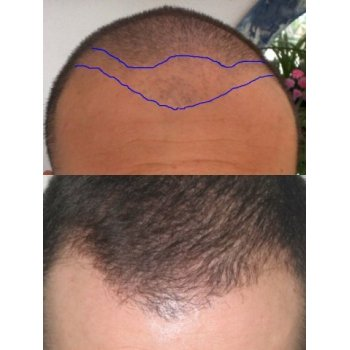 Design Hairline